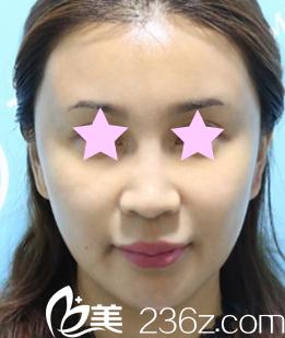 趁着白立明医生在太原欧美莲坐诊我去找他做了面部线雕提升