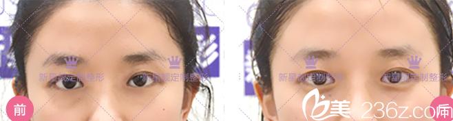 北京奥斯卡刘风卓双眼皮是否可靠看眼整形修复案例和价格给你答案