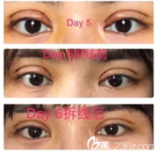 面诊了昆山铂特丽邢兰英和陈海朋专家后选择后者为我做的全切双眼皮+开眼角手术全过程