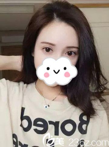 两个月前在西宁夏都整形找李广智做了双眼皮修复手术,这次我做了全切哦