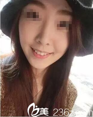 我和襄阳悦美整形确认过眼神 因咬肌造成的脸大问题可以通过瘦脸针解决
