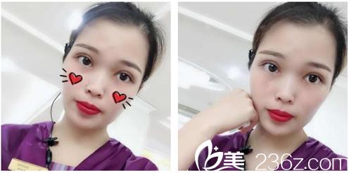 分享我找深圳美加美整形医院陈群医生做双眼皮开眼角的变美经历给大家