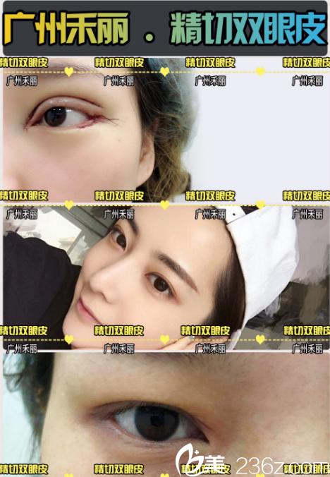 广州禾丽整形医院朱富初做的双眼皮案例