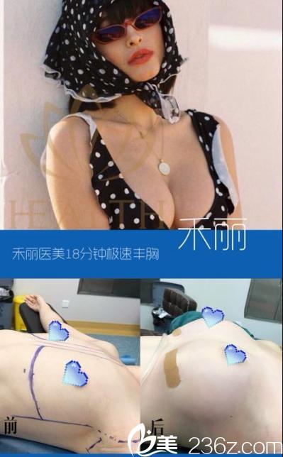 广州禾丽(和丽)整形医院朱富初自体脂肪极速隆胸案例