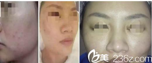 整理一份西京医院激光美容皮肤科的就诊流程,附有真人案例+价格表