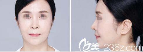 在长春姬安娣做了面部填充、提升+鼻整形后皱纹消失感觉年轻了10岁
