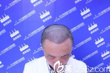 头发移植后2-3周变化