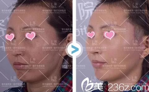 北京联合丽格杨大平整形怎样?看奥美定注射物取出修复案例价格给你答案