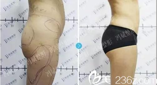 北京哪家自体脂肪丰臀好?看东方和谐冯斌丰臀案例和价格给你参考
