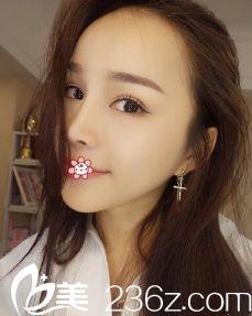 重庆军美整形医院胡金香给我做这双眼皮硅胶隆鼻假体垫下巴让我信了网上说的好效果也可信!