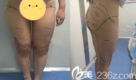 坚持找蚌埠美莱坞邓峰院长做了吸脂瘦大腿手术,很惊喜我现在变成了这样子