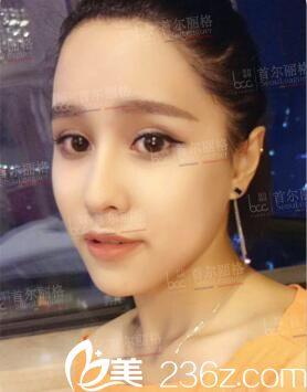 看了洪性范和李志海颧骨整形+下颌角切除真人案例对比,了解到上海磨骨手术价格