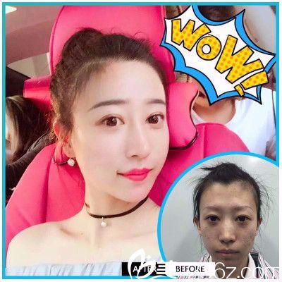 惠州元辰医疗美容医院叶明龙做的双眼皮隆鼻案例