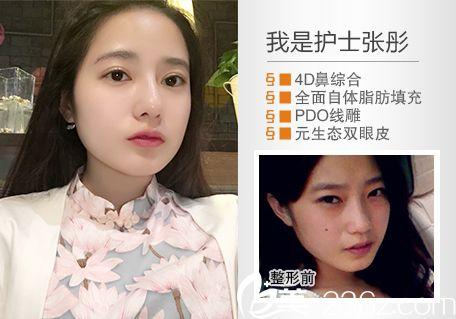 惠州元辰叶明龙做的双眼皮隆鼻案例