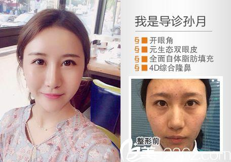 惠州元辰整形医院叶明龙双眼皮隆鼻案例