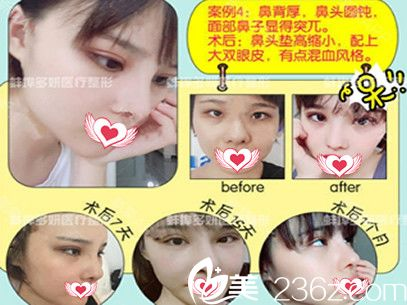 在蚌埠多妍做欧式平行双眼皮+鼻综合案例恢复期过程图