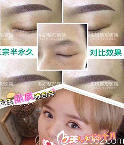 多妍整形正宗半永久纹眉术后3个月效果图展示