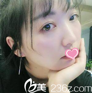 我找北京美莱李燕做了祛眼袋韩式双眼皮开眼角这效果让人怎么说