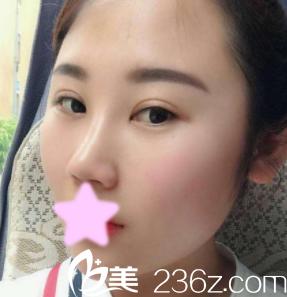 隆鼻日记:记录我找太原丽都整形杨明峰做鼻综合隆鼻1-7天的恢复过程照片