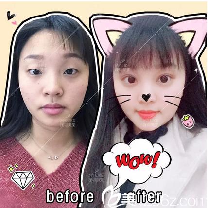 看了深圳非凡丁锋的案例后找深圳美莱陈磊医生做了全切双眼皮和开眼角