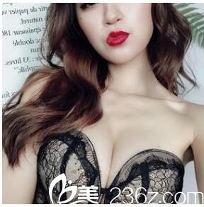 冲着深圳富华整形医院的好口碑找曹孟君院长做了娜绮丽假体隆胸手术