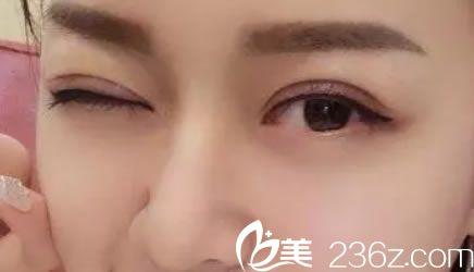 一直关注义乌德尔美客刘俊割双眼皮案例,终于找他做了8mm平行双眼皮+去皮去脂+提肌手术