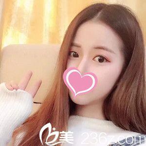 分享下在赣州德尔美客找刘勇铂做埋线双眼皮后的恢复过程