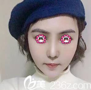 我在北京东方瑞丽花五万余找时间做了耳软骨鼻头抬高+硅胶假体隆鼻