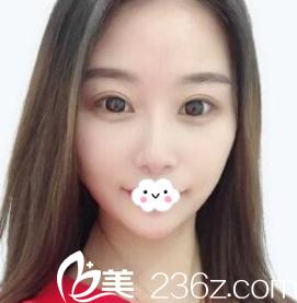 抱着试试的心态到天津美联致美注射玻尿酸隆鼻+垫下巴效果还挺好
