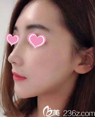 南昌雅美整形隆鼻手术30天恢复过程分享