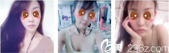 上海伊莱美做线雕怎么样?分享我做了面部埋线提升二十天后让童颜永驻