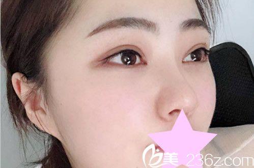 兰州梦想割双眼皮怎么样细致吗 推荐张晓萍医生全切双眼皮+开眼角真人案例和整形价格