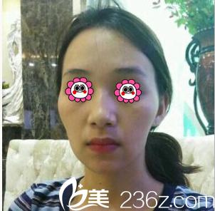 北京薇琳医疗美容医院胡庆旭术前照片1