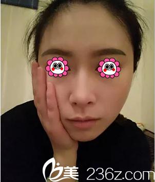 北京薇琳找胡庆旭面部脂肪填充第13天效果