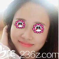 我在北京薇琳花了五万余找胡庆旭做了面部脂肪填充给你看效果