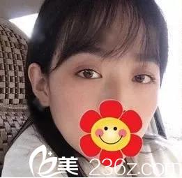 34岁姜女士在北京田永成整形医院做不开刀溶脂祛眼袋说效果满意