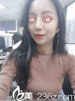 新疆千禧丽人整形医院赵靖建议给我的鼻综合果然比单纯的自体软骨隆鼻看着好看!