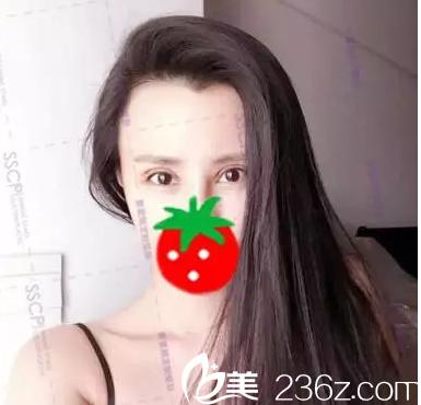 诉说我在北京奥斯卡找刘风卓修复肉条状双眼皮第五天真实效果