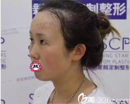 在北京新星靓做眼修复前侧面照