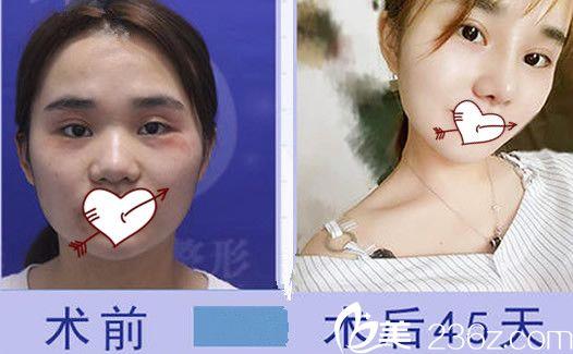 找合肥红妆陈刚做硅胶隆鼻+耳软骨垫鼻尖案例