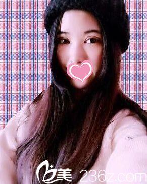 面诊了好几家医院后我还是在海南瑞韩整形医院做了全切双眼皮+开眼角术!