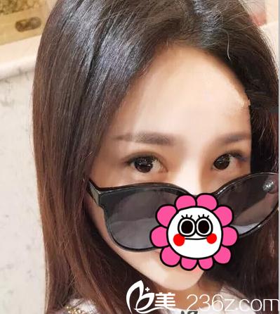 北京薇琳韩式双眼皮案例