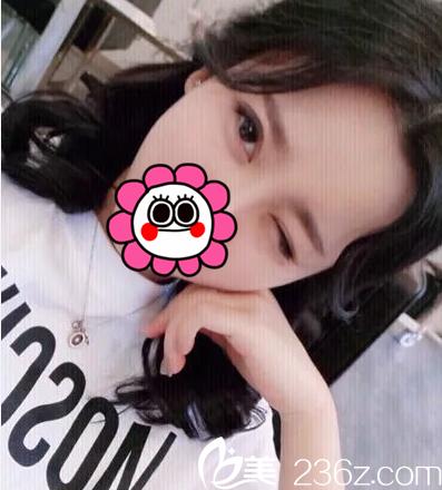 我在北京薇琳做韩式双眼皮开眼角因胡庆旭建议全切双眼皮不太适合我