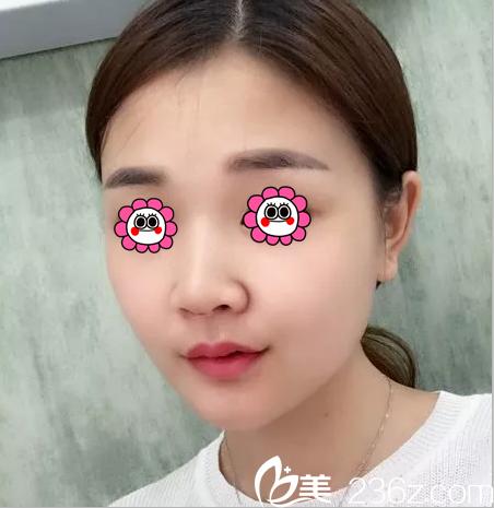北京薇琳医疗美容医院董香君术前照片1