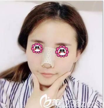 在北京薇琳做隆鼻第3天样子