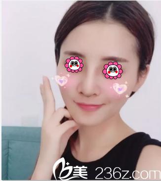 在北京薇琳找董香君做隆鼻第13天效果