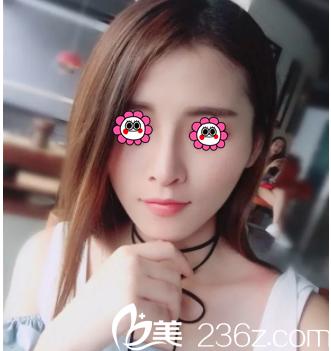 北京薇琳隆鼻案例