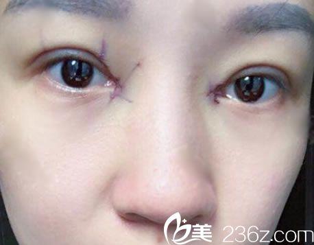 杭州静港刚做完双眼皮开眼角图片