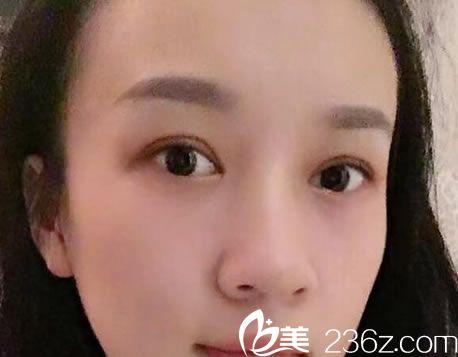 在杭州静港做双眼皮20天效果图