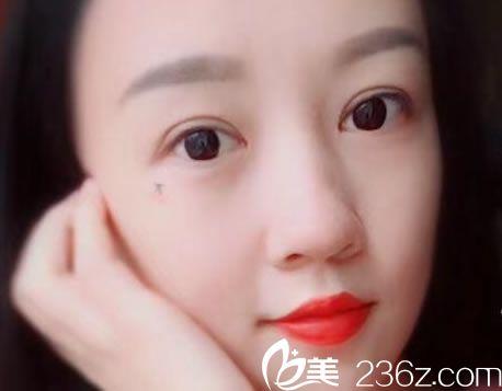 杭州静港医疗美容门诊部林忠泵术后照片1